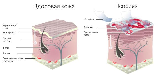 Крем псориаза - Псориаз
