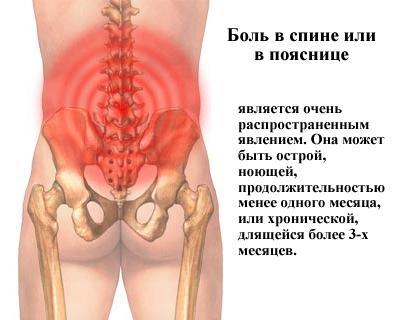 Как справиться с болью в пояснице