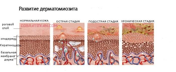 Инструкция на русском крема Диполак