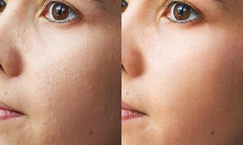 результат геля для очищения кожи лица