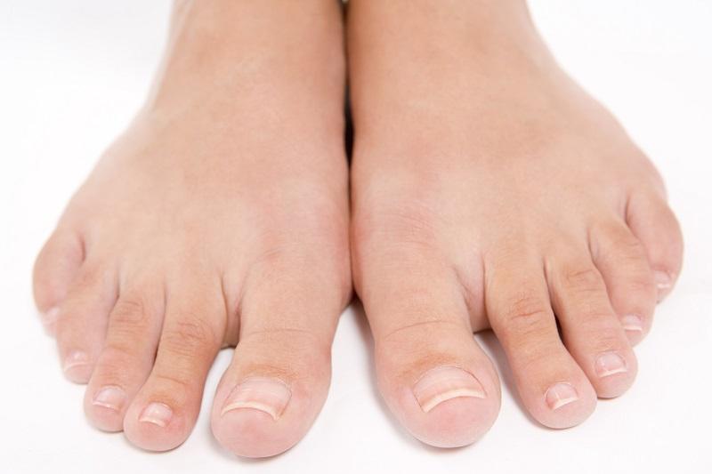 Методы борьбы с грибком на ногах