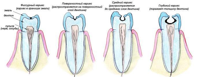 Применение Dentanalgi
