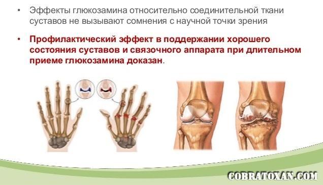 глюкозамин против вредной привычки хрустеть пальцами рук