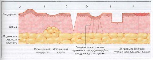 Kem NGHE для лечения шрамов и рубцов