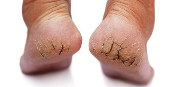 Крем для ног против трещин на пятках