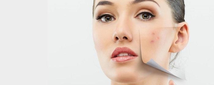 Отзывы об Acne preventing cream для лица