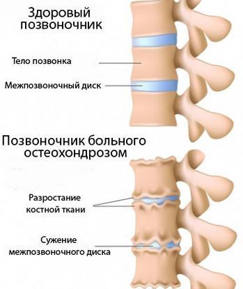 Лечение резких болей в спине и пояснице