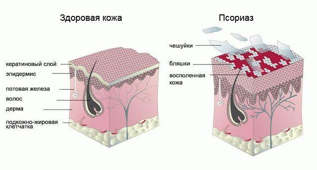 эффективный крем для регенерации кожи при псориазе Гот Сен