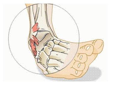 Оказание помощи при растяжении мышц и связок
