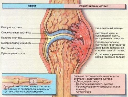 причины обострения ревматоидного артрита