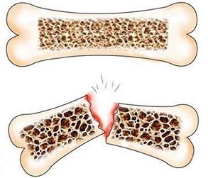 препарат против истончение костей