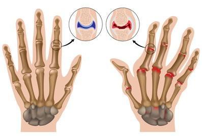 вредно ли хрустеть пальцами рук