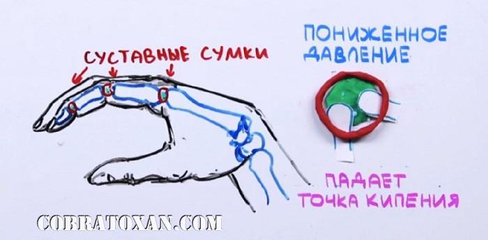 привычка хрустеть костяшками пальцев рук