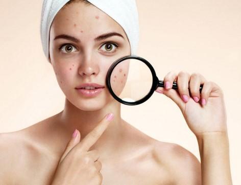 Acne preventing cream отзывы