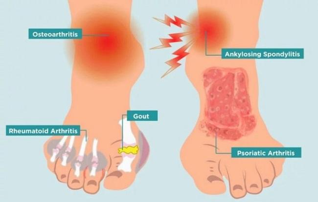 пластырь против артрита