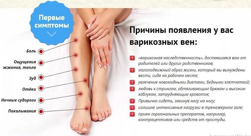 симптомы проявления варикоза