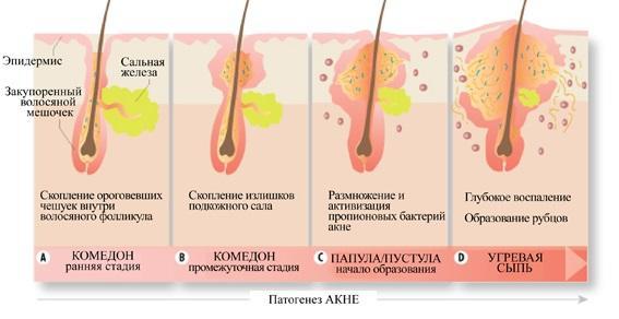 mentholatum acnes creamy wash