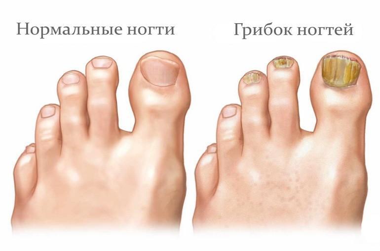 грибок фото до и после на пальцах ног