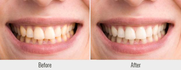 порошковая паста до и после применения