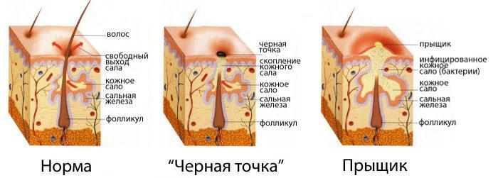 крем против образования акне на лице
