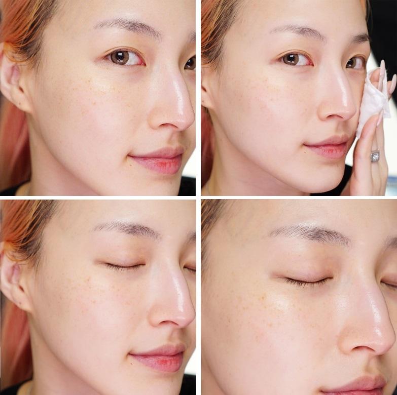 hyaluronic acid фото применения до и после
