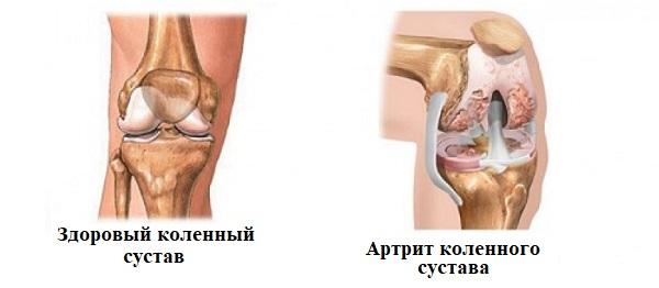 яд против болезней суставов