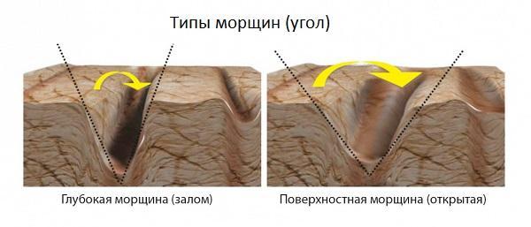 Увлажняющий антивозрастной лосьон с гиалуроновой кислотой