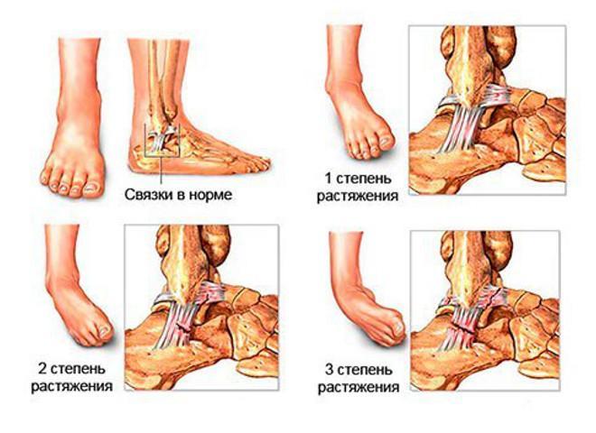 медицинская помощь для мышц и связок