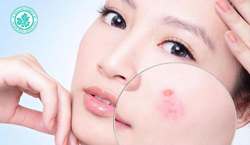 вьетнамская мазь от кожных заболеваний