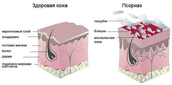 развитие псориаза у женщин
