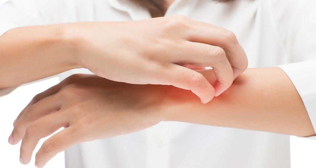 крем от дерматитов различной этиологии вьетнам