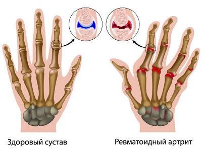 ранние симптомы ревматоидного артрита