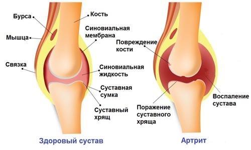 Лечебный спрей для снятия боли в коленном суставе
