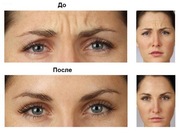 Корректирующее средство по уходу за кожей лица