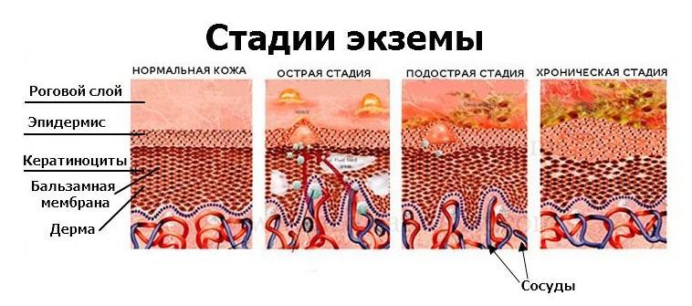 лечение на ногах и руках