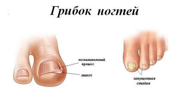 Сильная мазь от грибка ногтей