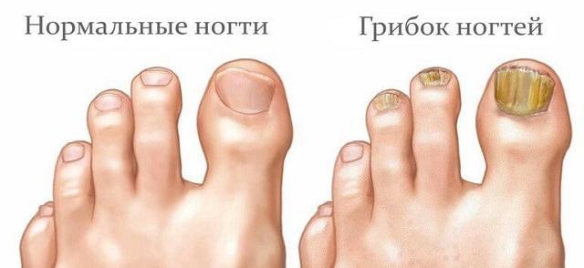 сильно пораженные ногти