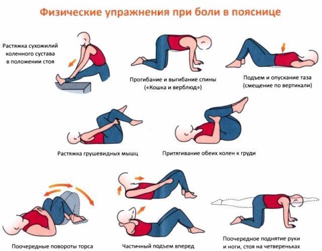 упражнения при сильной боли в пояснице